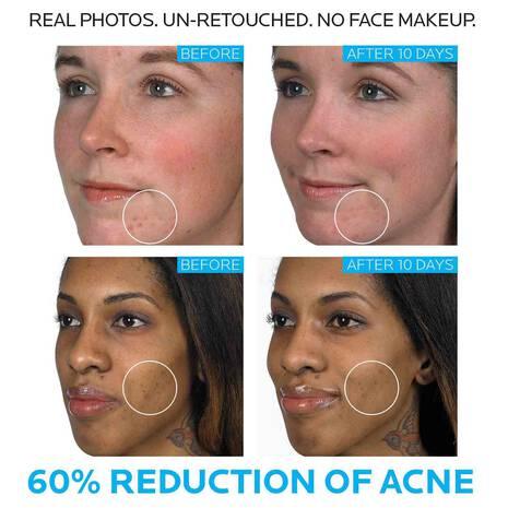 Effaclar Duo Acne Spot Treatment